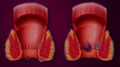 Cauzele-aparitiei-hemoroizilor