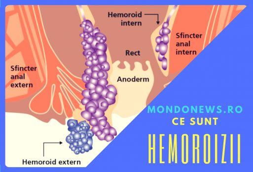 Ce sunt hemoroizii