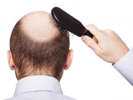 Căderea părului: Cum poate fi prevenită