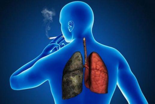 Cum să te ferești de cancerul pulmonar: Vitamina minune descoperită de specialiști